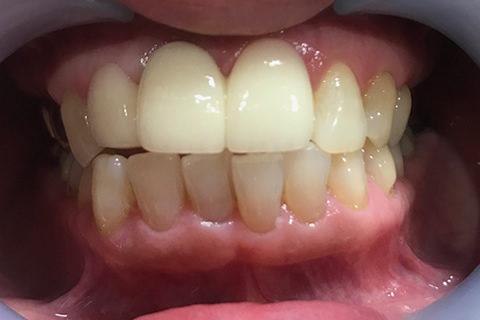 前歯のすき間と出っ歯を治療後1