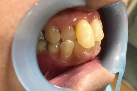 前歯のすき間と出っ歯を治療前2