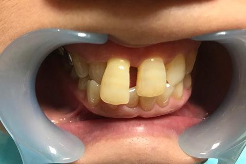 前歯のすき間と出っ歯を治療前3