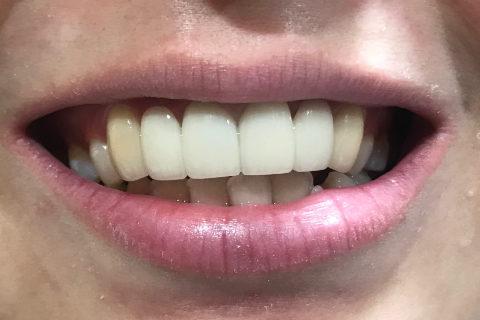 セラミッククラウンのやり直しと八重歯の改善2