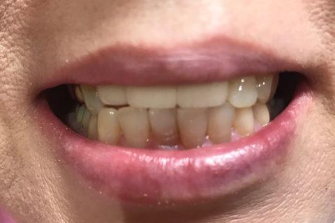 前歯のすき間と出っ歯を治療後3