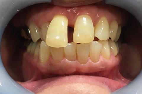 前歯のすき間と出っ歯を治療前1