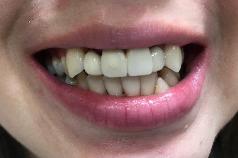 セラミッククラウンのやり直しと八重歯の改善1