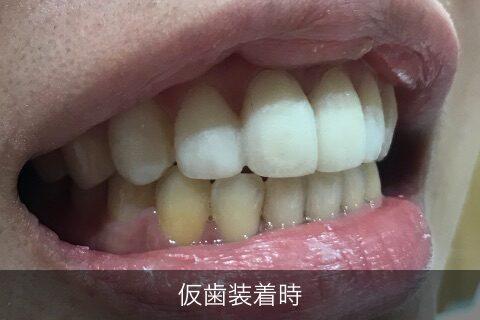 仮歯装着時1
